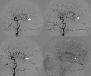 Arteriografía carótida común derecha mostrando MAV del lóbulo temporal con aferencia por ramas de arteria cerebral media y drenaje hacia vena de Galeno.