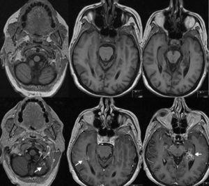 Resonancia magnética sin (imágenes superiores) y con contraste (imágenes inferiores) mostrando las 3 MAV (flechas).