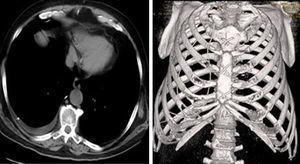 La TAC torácica muestra migración del catéter peritoneal bajo las costillas a nivel del segundo espacio intercostal derecho (derecha) y presencia del extremo distal en la cavidad pleural derecha con derrame (izquierda).