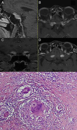 Case 3. Preoperative MRI. T1-weighted images after administration of gadolinium shows strongly enhancing irregular mass encompassing both optic nerve canals and anterior clinoid processes (A–D). E – Some noncaseating granulomas enclosed within fibrous rims. Note a stellate inclusion (asteroid body) within giant multinucleated cell. H+E. ×400.