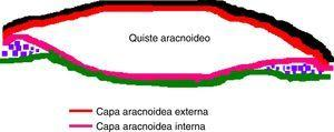 Exámenes ultraestructurales han mostrado que la pared del quiste está formada por la división de la membrana aracnoidea en una membrana interna y externa rodeando a la cavidad quística. Constituyen entonces quistes «intraaracnoideos» puesto que son dilataciones congénitas del LCR contenido entre la membrana aracnoidea y el espacio subaracnoideo de las cisternas y de las fisuras cerebrales principales. Subyacente al quiste no existe tejido trabecular, puesto que el espacio subaracnoideo está obliterado.