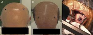 (A and B) Illustration of esthetic results of DBS implants in two hairless patients. Arrowheads point to the position of bilateral burr holes thephination sites. (C) DBS Lead in place seconds after the application of the adhesive, sealing the 6mm-burrhole and fixing the lead.