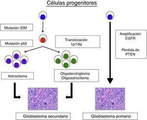 Historia natural de los glioblastomas primarios y secundarios. El glioblastoma secundario se inicia con mutación de la isocitrato deshidrogenasa 1 (IDH1), posteriormente se divide en astrocitomas si hay mutación de p53 u oligodendrogliomas u oligoastrocitomas si hay una traslocación 1p/19q. Por otro lado en los glioblastomas primarios hay mutaciones del EGFR, pérdida del PTEN y/o otras alteraciones genéticas. A pesar de que a nivel de la anatomía patológica son idénticos la historia natural es absolutamente diferente.