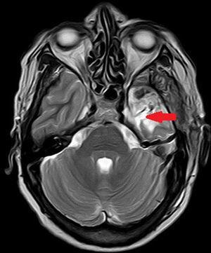 Electrodo profundo en resto amigdalar.