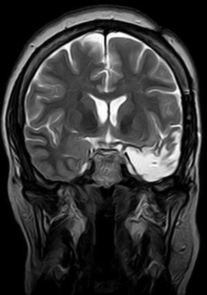 Control de resección del resto amigdalar previo.