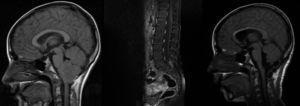 RM cerebral prequirúrgica y posquirúrgica y raquis de papiloma metastásico.