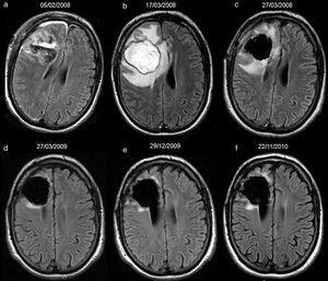 40-year-old man with resected oligodendroglioma. High-signal due to abcessified fluid in the resection cavity, with resolution on subsequent studies, and without tumour recurrence until the last study included in the analysis. Follow-up axial FLAIR sequences (a) at 4 days after surgery, the signal of the cavity is heterogeneous due to debris and haemorrhage, (b) at 1.5 months, the cavity is hyperintense compared to ventricular CSF; the association with prominent oedema, ring-enhancement, restricted diffusion and low rCBV (not shown) indicates an abscess in the cavity; no findings reveal tumour recurrence on FLAIR or other sequences (not shown), (c) after draining the abscess and 10 days later, the signal of the cavity turns isointense compared to ventricular CSF, (d–f) subsequent studies at 14, 23 and 34 months, the cavity remains isointense. CSF-cerebro-spinal fluid, rCBV-relative cerebral blood volume.