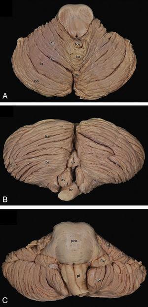 Superficie tentorial o superior (A), suboccipital o inferior (B) y petrosa o anterior (C) del cerebelo. Las abreviaciones con letras en color blanco hacen referencia a cisuras. ac: amígdala cerebelosa&#59; br: bulbo raquídeo&#59; cp: cisura primaria&#59; cu: culmen&#59; de: declive&#59; flc: flóculo&#59; lbi: lobulillo biventer&#59; lce: lobulillo central&#59; lcu: lobulillo cuadrangular&#59; ls: lobulillo simple&#59; lsi: lobulillo semilunar inferior&#59; lss: lobulillo semilunar superior&#59; pi: pirámide bulbar&#59; pro: protuberancia&#59; uv: úvula.