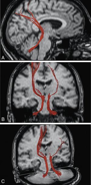 Demostración de los pedúnculos cerebelosos superiores y sus proyecciones talamocorticales mediante imágenes de DTT en distintos planos de RM cerebral.