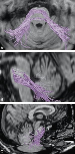 Demostración de los pedúnculos cerebelosos medios mediante imágenes de DTT en distintos planos de RM cerebral.