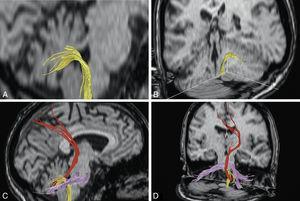 Demostración de los pedúnculos cerebelosos inferiores (A y B) y conjuntamente de los 3 pedúnculos cerebelosos (C y D) mediante imágenes de DTT en distintos planos de RM cerebral.