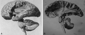 A y B)Ilustración histórica de Herbert Mayo, con especial distinción entre las fibras de los 3 pares de pedúnculos cerebelosos. Fuente: Mayo11.