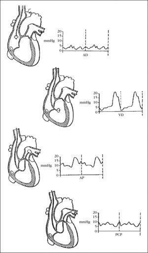 Modificación de la onda que aparece en el monitor al atravesar las diferentes cavidades. AD: aurícula derecha; AP: arteria pulmonar; PCP: presión de enclavamiento capilar pulmonar; VD: ventrículo derecho.