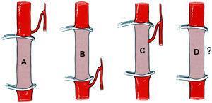 Sistema de clasificación de los resultados de la arteriografía preoperatoria de la médula espinal15.