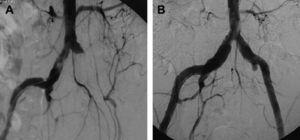 A Angiografía preoperatoria que demuestra la oclusión de la iliofemoral izquierda con el muñón permeable de la ilíaca común. B Angiografía efectuada 6 meses después de la EFPI izquierda que muestra una arteria ilíaca por completo permeable.
