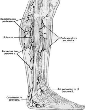 Angiosomas del pie originados en la arteria perineal (n=2): rama calcánea, rama perforante anterior. Gastrocnemius perforators=Perforadores de los gastrocnemios; Soleus m=M. Sóleo; Perforators from peroneal a=Peforadores de la a. Peronea; Calcanear br of peroneal a=Rama calcánea de la a. Peronea; Perforators from peroneal ant tibal a=Perforadores de la a. tibial anterior; Ant. perforating br of peroneal a=Rama perforante anterior de la a. peronea.