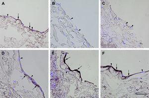 Inmunotinción con anticuerpos dirigidos a fvW. Imágenes representativas de las secciones transversales que muestran las células cultivadas en una estructura de gelatina durante 10 días, inmunoteñidas usando antisueros dirigidos a fvW. Su expresión se manifestó en las células endoteliales (A), fibroblastos diferenciados hacia un tipo de célula similar a la endotelial en la estructura (D), fibroblastos diferenciados hacia un tipo de célula similar a la endotelial antes de su siembra en la estructura (E), y fibroblastos de clonas de células individuales diferenciados hacia un tipo de célula similar a la endotelial en la estructura (F). Obsérvese la presencia de inmunorreactividad, indicada por las flechas. No se detectó inmunorreactividad en los fibroblastos de control (B, C). La tinción DAPI se usó para visualizar los núcleos de las células (puntas de flecha). Barra de escala = 50 μm para todas las imágenes.