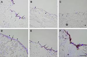 Inmunotinción con anticuerpos dirigidos hacia ve-cadherina. Imágenes representativas de las secciones transversales que muestran las células cultivadas en una estructura de gelatina durante 10 días, inmunoteñidas usando antisueros dirigidos a ve-cadherina. Su expresión se manifestó en las células endoteliales (A), fibroblastos diferenciados hacia un tipo de célula similar a la endotelial en la estructura (D), fibroblastos diferenciados hacia un tipo de célula similar a la endotelial antes de su siembra en la estructura (E), y fibroblastos de clonas de células individuales diferenciados hacia un tipo de célula similar a la endotelial en la estructura (F). Obsérvese la presencia de inmunorreactividad, indicada por las flechas. No se detectó inmunorreactividad en los fibroblastos de control (B, C). La tinción DAPI se usó para visualizar los núcleos de las células (puntas de flecha). Barra de escala = 50 μm para todas las imágenes.