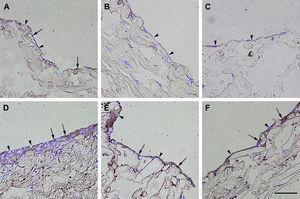 Inmunotinción con anticuerpos dirigidos hacia el receptor B2 de la bradicinina. Imágenes representativas de las secciones transversales que muestran las células cultivadas en una estructura de gelatina durante 10 días, inmunoteñidas usando anticuerpos antirreceptor B2 de la bradicinina. Su expresión se manifestó en las células endoteliales (A), los fibroblastos diferenciados hacia un tipo de célula similar a la endotelial en la estructura (D), fibroblastos diferenciados hacia un tipo de célula similar a la endotelial antes de su siembra en la estructura (E), y fibroblastos de clonas de células individuales diferenciados hacia un tipo de célula similar a la endotelial en la estructura (F). Obsérvese la presencia de inmunorreactividad indicada por las flechas. No se detectó inmunorreactividad en los fibroblastos de control (B, C). La tinción DAPI se usó para visualizar los núcleos de las células (puntas de flecha). Barra de escala = 50 μm para todas las imágenes.
