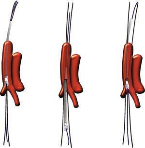 EL dibujo muestra en tres pasos la maniobra que separa las guías sobre la línea de arteriotomía.