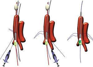 Procedimiento de inserción de los dispositivos Proglide sobre las guías laterales y cómo la localización de las suturas longitudinales interrumpidas depende del diámetro de la guía central.