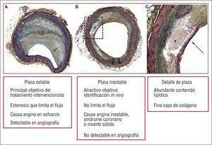Características histológicas y de presentación clínica de placa de ateroma coronario. A: placa excéntrica que limita el flujo (identificable con angiografía), con gruesa capa fibrosa que caracteriza la placa estable. B: placa con cierto grado de remodelado positivo (efecto Glagov), que condiciona una leve estenosis concéntrica (difícilmente identificable con angiografía) y con gran contenido lipídico cubierto por capa fibrosa fina que caracteriza la placa inestable o vulnerable. C: detalle de condicionantes de vulnerabilidad de placa. Modificado de Low et al3.