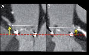 Imágenes longitudinales de la raíz aórtica, en el plano de origen de la arteria coronaria derecha (A) y el tronco común (B). Sobre estas imágenes se puede calcular la altura del origen de cada arteria (flechas amarillas) respecto al plano del anillo aórtico (línea discontinua roja) y la amplitud de la raíz (flechas blancas).