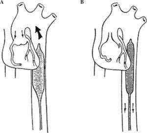 Colocación correcta del BIACP en aorta descendente. A: inflado durante la diástole con válvula aórtica cerrada. B: desinflado durante la sístole. Válvula aórtica abierta.