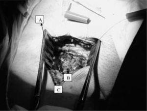 A: bolsas de tabaco para cánula arterial. B: cánula venosa. C: cánula de perfusión del miembro.