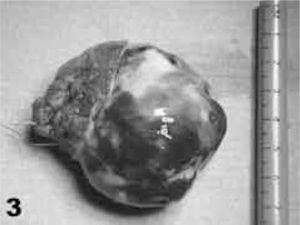 Imagen de la pieza quirúrgica extirpada en uno de nuestros pacientes, en el que resultó ser un mixoma encapsulado, con base de implantación septal amplia.