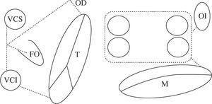 Esquema del patrón de lesiones del Maze III. En esquema están representadas ambas aurículas. Las incisiones están dispuestas con línea de puntos. Ambas orejuelas son escindidas en el procedimiento Maze III. VCS: vena cava superior; VCI: vena cava inferior; FO: fosa oval; T: anillo tricúspide; M: anillo mitral; CQ: cicatriz quirúrgica representada en la línea de puntos.