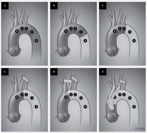 A: distribution of landing zones for TEVAR. Zone 0: repair involving the innominate artery. Zone 1: involving the left carotid artery. Zone 2: involving the left subclavian artery. Zone 3: involving the proximal third of the descending thoracic aorta. Zone 4: involving the distal two thirds of the descending thoraci aorta. B and C: placement of a device in zone 3 or 4 without any revascularization. D: coverage of the left subclavian artery with a left carotid subclavian bypass. E: coverage of the left carotid and subclavian arteries with a carotid-carotid and carotid subclavian bypass. F: complete arch coverage with ascending aorta to innominate and left carotid bypass as well as a left carotid subclavian bypass.