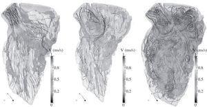 Líneas de velocidad de ventrículo izquierdo. A: eyección sistólica. B: llenado diastólico. C: fase de llenado total.
