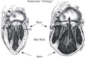"""Fiber orientation in dilated spherical ventricle (above), whereby the """"coils within coils"""" fiber orientation is more transverse: this configuration impairs function. Anticipated changes in fiber orientation following surgical ventricular restoration are shown below. A spherical form may persist by placing the patch in a flatter (lower left), rather than oblique direction (lower right). The treatment of """"form versus disease"""" is accomplished by rebuilding this normal oblique configuration of the cardiac helix, and the solid line (lower right) reflects the oblique angulation of the surgical closure that rebuilds the natural ellipse. This left ventricular oblique reconfiguration may be accomplished with sutures or a patch, but the upper placement site within the septum just below the aortic valve annulus often contains normal muscle."""