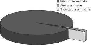 Frecuencia relativa de los diferentes tipos de arritmias quirúrgicas.