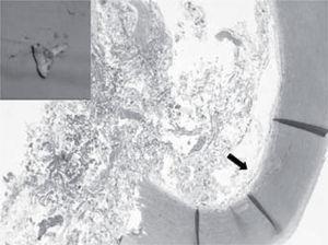 Visión macroscópica de la neoplasia mucoide intraluminal. Visión microscópica con tinción de hematoxilina-eosina de una sección transversal de la pared aórtica que contiene la proliferación neoplásica subintimal (flecha negra) y el lumen ocupado por material fibrinohemorrágico y mixoide.