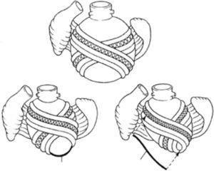 Bases de la hipótesis de Torrent Guasp para la aplicación del remodelado reverso del ventrículo.