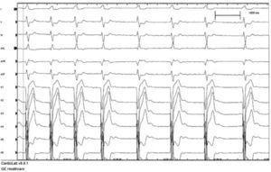 Imagen ECG preimplante. Se observa un ritmo propio del paciente antes del implante. FA con respuesta controlada y QRS con BRI.
