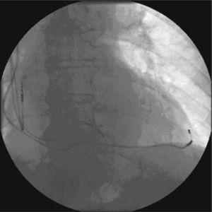 Imagen de sistema de MCP tricameral visto en escopia al final del implante, en proyección anteroposterior.