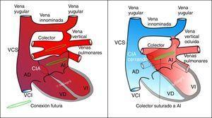 Esquema de la reparación de un DVPAT supracardíaco. A la izquierda, situación prequirúrgica. A la derecha, situación tras la reparación. Cortesía del Dr. Villagrá.