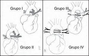 Atresia pulmonar con comunicación interventricular. Clasificación. Grupo I: existe una atresia valvular o infundibular. Grupo II: ausencia del tronco pulmonar, aunque las ramas pulmonares derecha e izquierda están en continuidad y la circulación pulmonar depende del ductus. Grupo III: las arterias pulmonares principales están severamente hipoplásicas y la circulación pulmonar es a través de numerosas arterias colaterales aortopulmonares. Grupo IV: las arterias pulmonares centrales están ausentes y todo el flujo pulmonar se recibe a través de colaterales aortopulmonares.