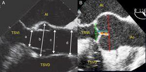 Dimensiones de los componentes de la raíz aórtica en eje largo de aorta medioesofágico en ecocardiografía transesofágica (A). a: anillo; b: senos de Valsalva o raíz aórtica; c: unión sinotubular o UST; d: aorta ascendente; e índices de reserva funcional (B): longitud de coaptación (flecha negra); altura efectiva del velo (flecha blanco).