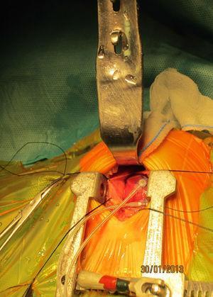 Imagen intraoperatoria de un implante de marcapasos epicárdico por miniestertomía inferior.