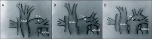 Tipos de interrupción del arco aórtico. En el tipo A, la interrupción se sitúa tras la salida de la arteria subclavia izquierda. En el tipo B se sitúa entre las arterias carótida y subclavia izquierdas. El tipo C presenta una interrupción del arco aórtico tras la salida del tronco braquiocefálico. AoAs: aorta ascendente; AoDes: aorta descendente; D.A.: ductus arterioso.