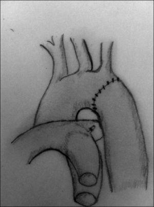 Tras la resección de la zona de coartación y la movilización extensa de la aorta descendente y el arco aórtico, se realiza una anastomosis término-terminal, que elimina el estrechamiento.