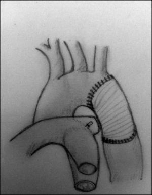 Tras la ligadura del ductus arterioso y la resección de la zona de estrechamiento aórtico, se interpone en la zona resecada un injerto, generalmente de dacrón.