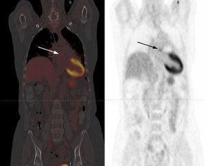 Control con PET-TC 6 meses después de la finalización de la tomoterapia. Se aprecia una discreta imagen residual hipocaptante a nivel retropulmonar (flecha blanca y flecha negra), sin evidencia de metástasis a distancia ni recidiva tumoral relevante.