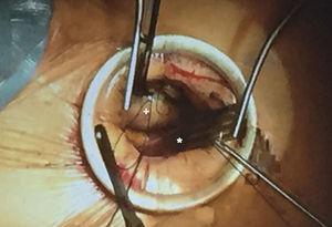 Imagen operatoria de MTA por 2.° EICD, visión del cirujano. Asterisco (*): orejuela de AD; signo de suma (+): aorta ascendente. Cedido por el Dr V. Bapat.