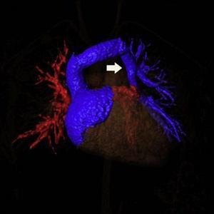 Reconstrucción de resonancia magnética. Se observa el drenaje venoso pulmonar anómalo llegando a una vena vertical (flecha blanca) que desemboca en la vena innominada.