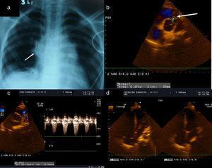 a) En la radiografía de tórax se observa la reexpansión de los lóbulos superior y medio del pulmón derecho. b-d) En la ecocardiografía de control se puso de manifiesto un buen cierre y apertura de los neovelos pulmonares, así como la presencia de estenosis e insuficiencia pulmonar ligeras.